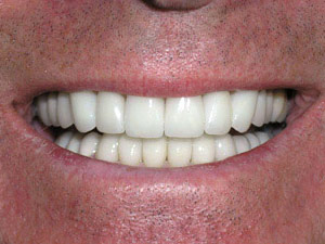 Veneers After Photos